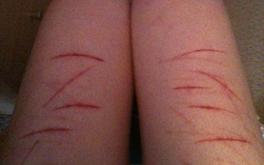 Teenagers Who Self-Harm: Why and What To Do About It?